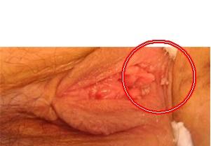 Symptom free herpes dating 5